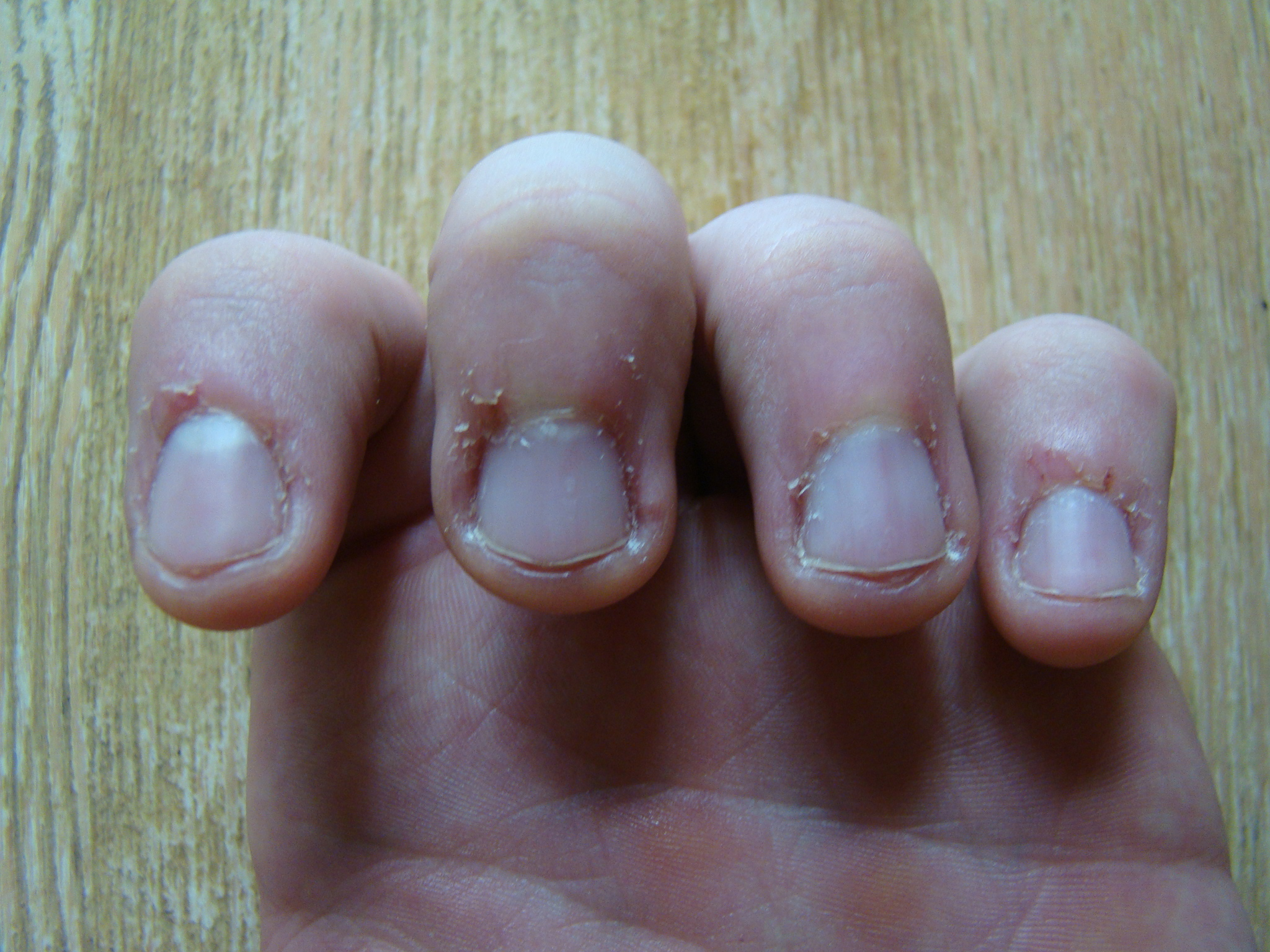 How I Stopped Biting My Nails Eat Move Play